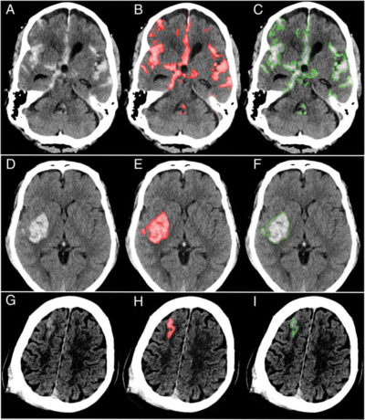 Brain with hemorrhages highlightedscans